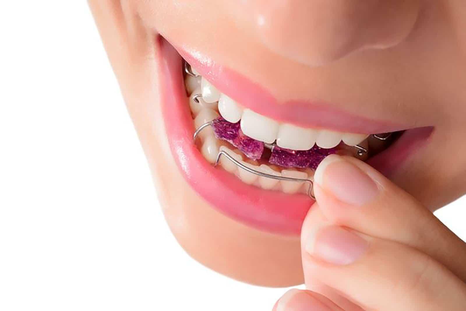 Diş teli fiyatı