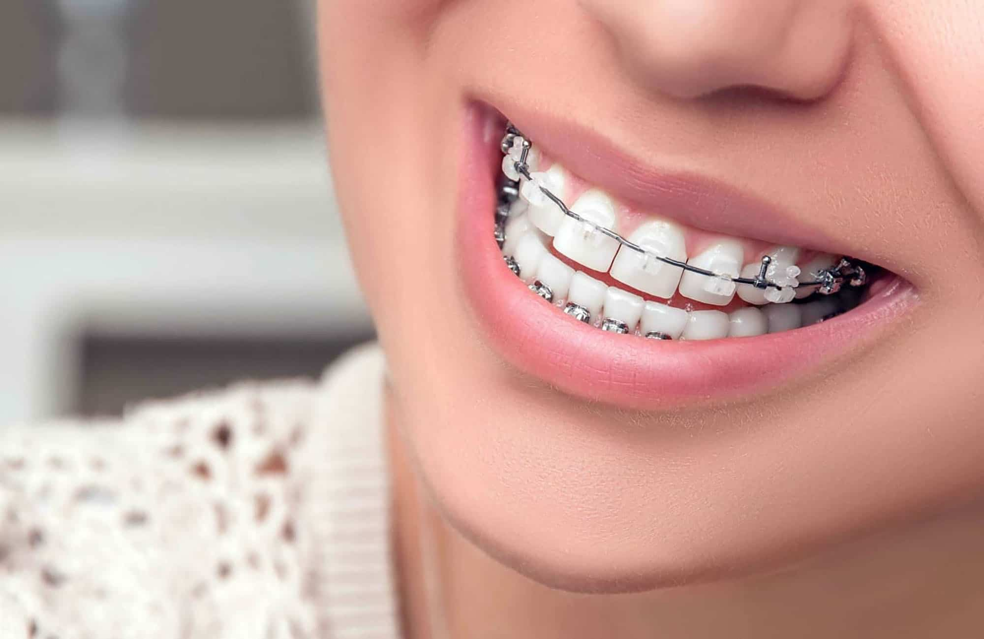 Diş Teli Ne Kadar