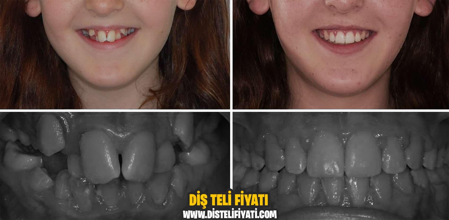 Diş Teli Fiyatları Tedaviler
