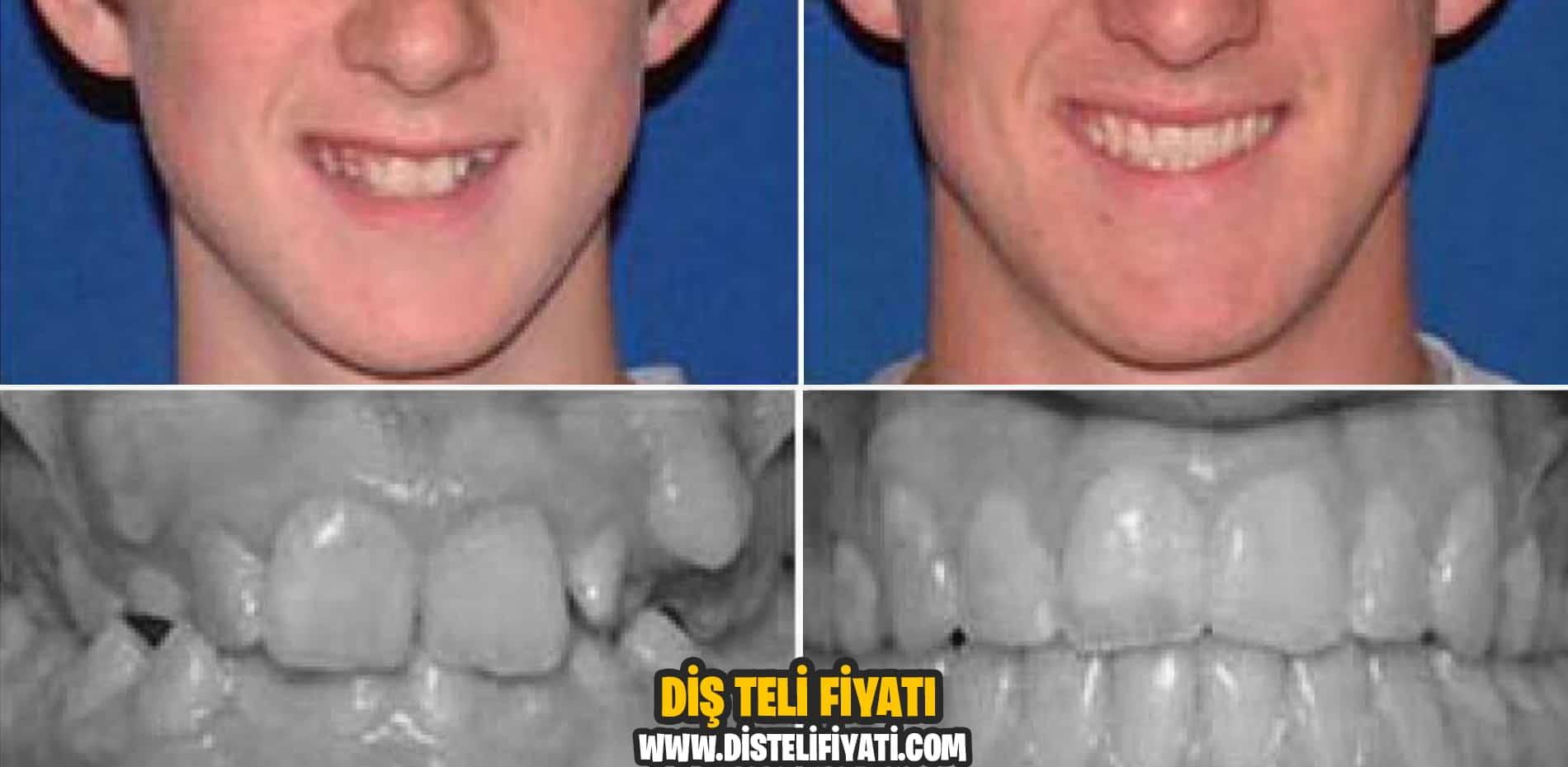 Diş Teli Fiyatları Tedavisi