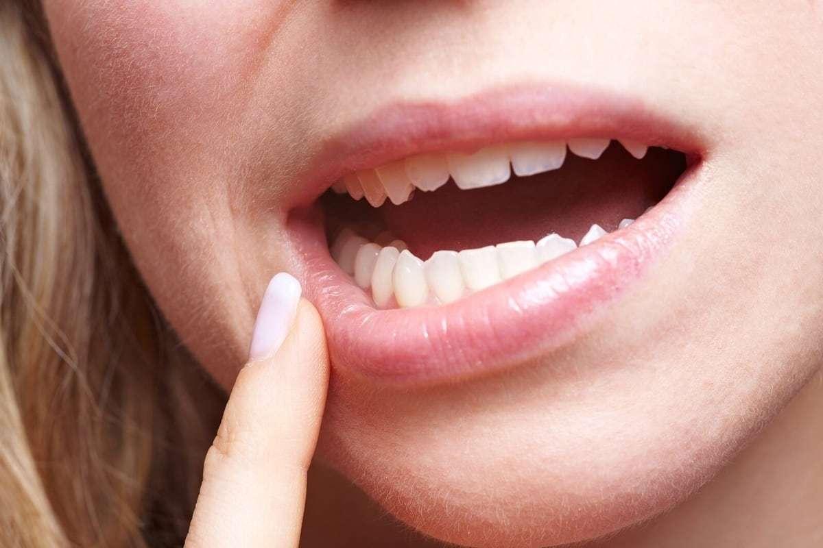 ağız mantarı tedavisi