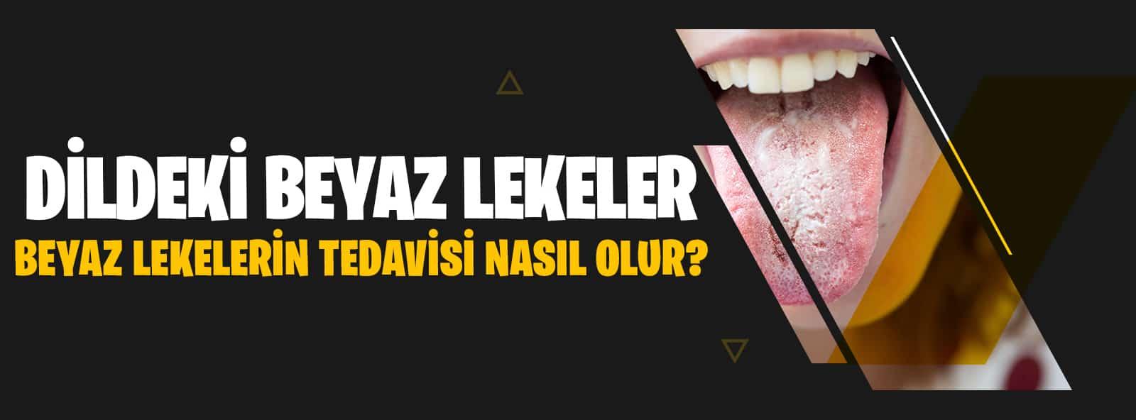Dildeki Beyaz Lekeler Nedir?