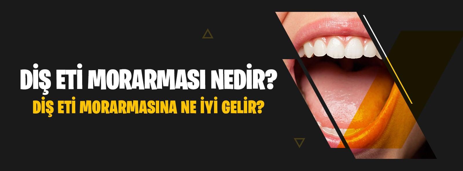Diş Eti Morarması Nedir?