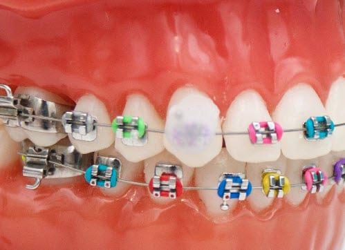 Diş Teli Mumu Nasıl Takılır