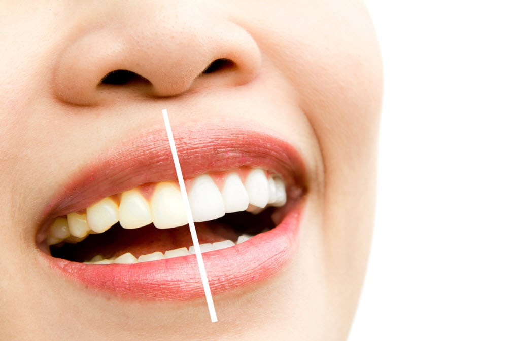 Dişlerdeki Siyah Lekeler İçin Doğal Çözümler