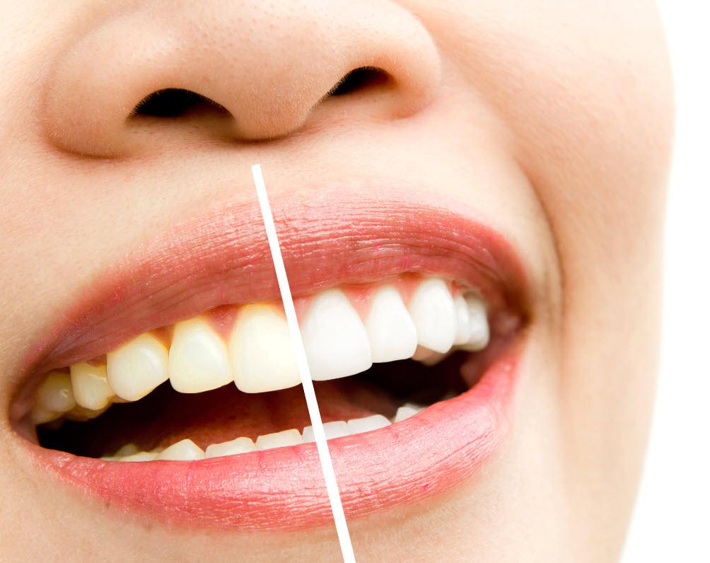 Tokat Diş Poliklinik Hizmetleri